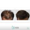 Haartransplantation in der Türkei ab 1.690€ - inkl. Hotel + Transfer